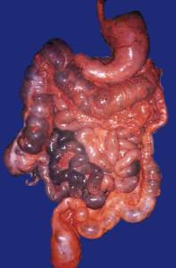 lavaggio-intestinale
