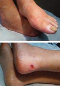 piedi-diabetici