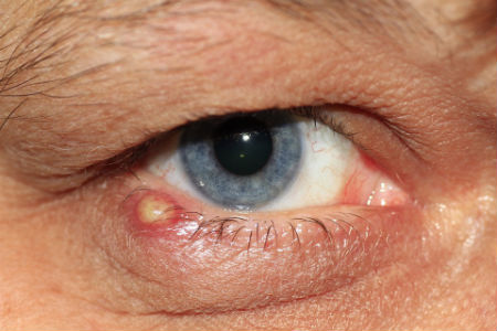 infezione sul bordo degli occhi