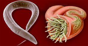 disegno di vermi nell'intestino
