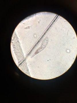 ingrandimento di parassiti al microscopio