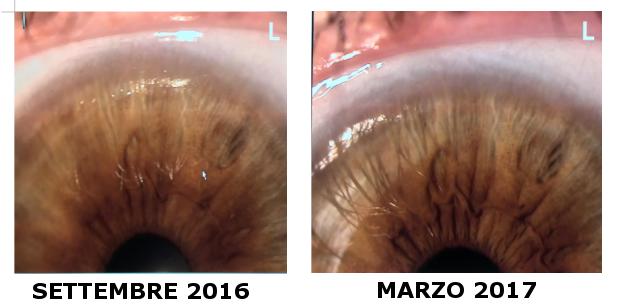 differenze iridi dopo trattamento iridologico