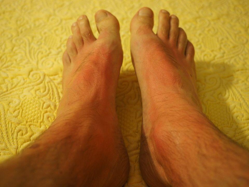 reazione allergica sui piedi