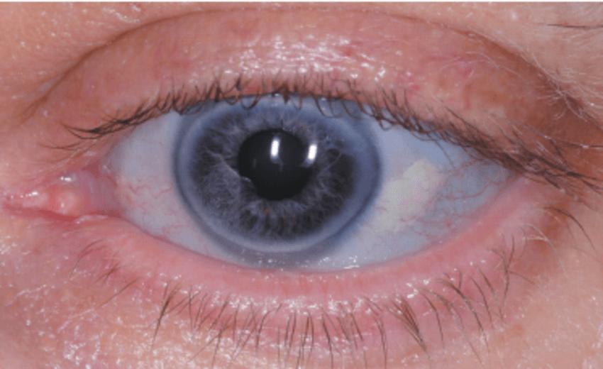 occhio con sclera azzurra