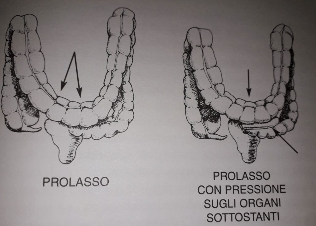 foto intestino con prolasso