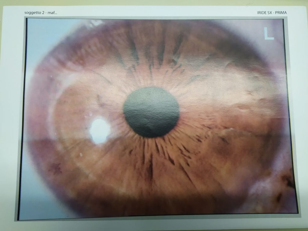 iride biorigenya 4
